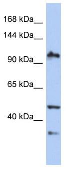 Western blot - XAB2 antibody (ab90127)