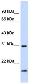 Western blot - LIGHT antibody (ab90133)