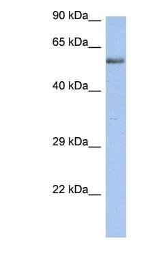 Western blot - ZNF513 antibody (ab90137)