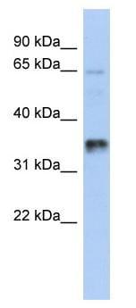 Western blot - UBAC2 antibody (ab90144)
