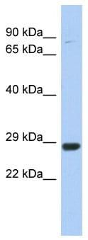 Western blot - C21orf91 antibody (ab90145)