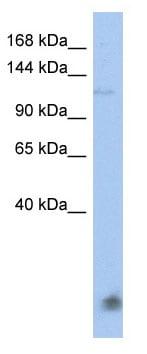 Western blot - HECT E3 ubiquitin ligase  antibody (ab90146)