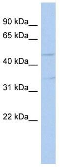 Western blot - TGF beta 3 antibody (ab90264)