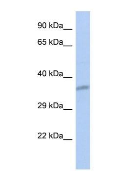 Western blot - CEACAM19 antibody (ab90294)