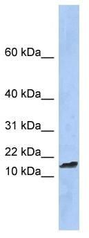 Western blot - TAL2 antibody (ab90307)