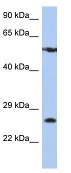 Western blot - ZNF10 antibody (ab90308)