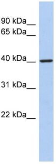 Western blot - LDB2 antibody (ab90315)