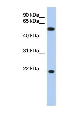 Western blot - gamma C Crystallin antibody (ab90333)