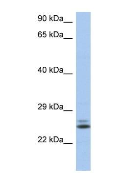 Western blot - Rab15 antibody (ab90359)