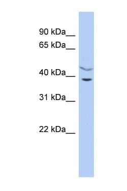 Western blot - C11ORF77 antibody (ab90468)