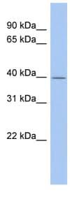 Western blot - Evx1 antibody (ab90511)