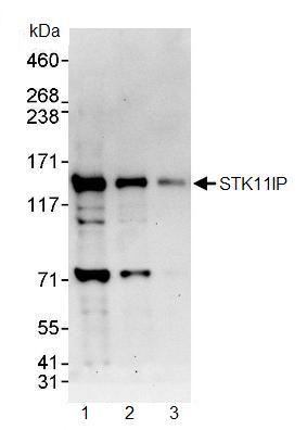 Western blot - STK11IP antibody (ab90573)