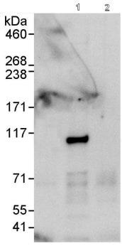 Immunoprecipitation - MLN51/CASC3 antibody (ab90651)