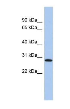 Western blot - LYSMD1 antibody (ab90676)