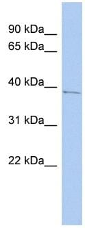 Western blot - PNMA1 antibody (ab90700)