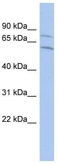 Western blot - CNOT2 antibody (ab90703)