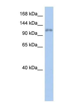 Western blot - ZNF217 antibody (ab90713)