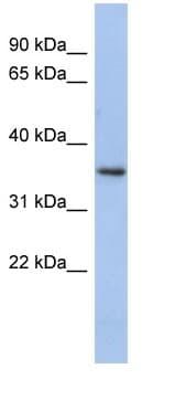 Western blot - PEX7 antibody (ab90822)