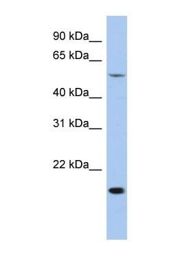 Western blot - TEA domain family member 2 antibody (ab91049)