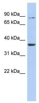 Western blot - HS3ST1 antibody (ab91065)