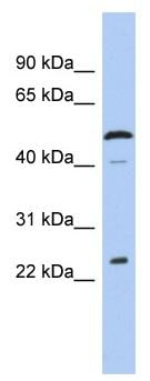 Western blot - C1ORF190 antibody (ab91069)