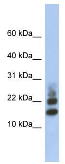 Western blot - Anti-RPS15A antibody (ab91071)
