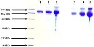 SDS-PAGE - IgM mu chain, Human Plasma (ab91106)