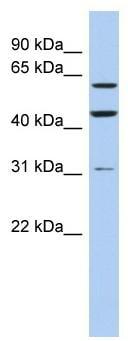 Western blot - ZNF179 antibody (ab91110)