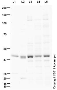 Western blot - Anti-NPY1R antibody (ab91262)