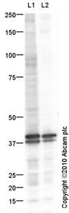 Western blot - liver Arginase antibody (ab91279)