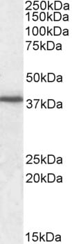 Western blot - Junctional Adhesion Molecule 1 antibody (ab91501)