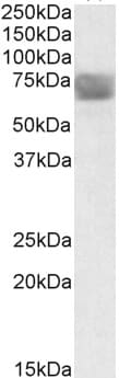 Western blot - TPP1 antibody (ab91512)