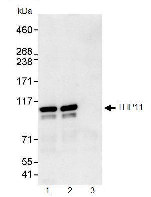 Immunoprecipitation - TFIP11 antibody (ab91520)