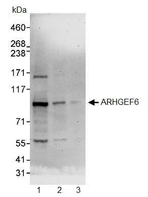 Western blot - ARHGEF6 antibody (ab91562)