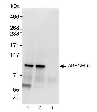 Immunoprecipitation - ARHGEF6 antibody (ab91562)
