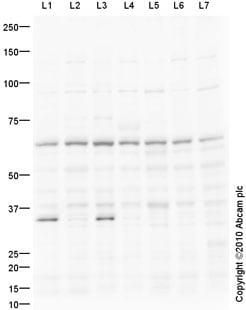 Western blot - PRDM14 antibody (ab91587)