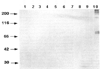Western blot - Haploid sperm cell-specific antigen antibody [TRA54] (ab92286)
