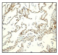 Immunohistochemistry (Formalin/PFA-fixed paraffin-embedded sections) - SCARF1 antibody [EPR3848] (ab92308)