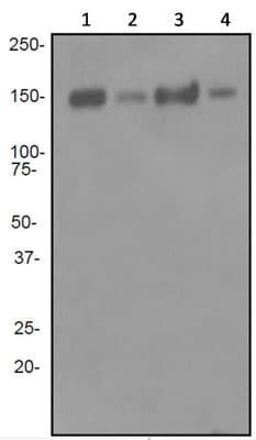 Western blot - Alpha Fodrin antibody [EPR3830] (ab92373)