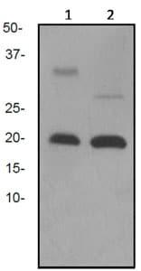 Western blot - IL2 antibody [EPR2780] (ab92381)