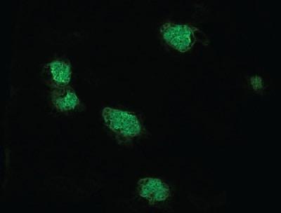 Immunohistochemistry (Frozen sections) - Anti-EpCAM antibody [G8.8] (ab92382)