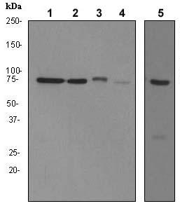 Western blot - Menin antibody [EPR3986] (ab92443)