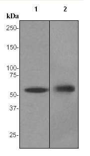 Western blot - Cytokeratin 4 antibody [EPR1598] (ab92465)