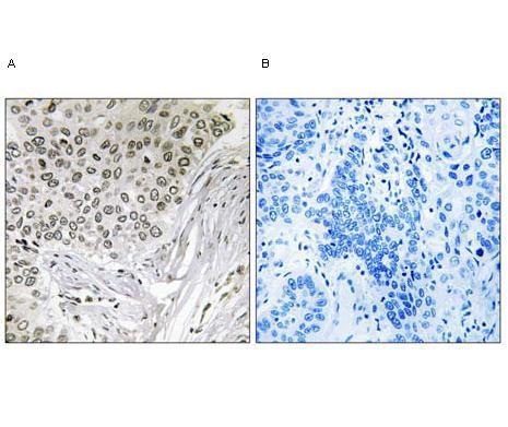 Immunohistochemistry (Formalin/PFA-fixed paraffin-embedded sections) - EFTUD2 antibody (ab92479)