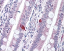 Immunohistochemistry (Formalin/PFA-fixed paraffin-embedded sections) - PD1 antibody (ab92484)