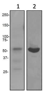 Western blot - Fibrinopeptide B antibody [EPR3082] (ab92510)