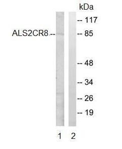 Western blot - ALS2CR8 antibody (ab92531)
