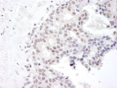 Immunohistochemistry (Formalin/PFA-fixed paraffin-embedded sections) - Gemin 4 antibody (ab92535)