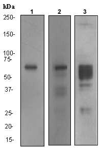Western blot - MMP2 antibody [EPR1184] (ab92536)