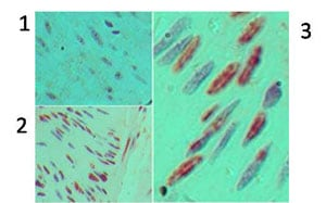 Immunohistochemistry (Formalin/PFA-fixed paraffin-embedded sections) - Cyclin D1 antibody (ab92566)